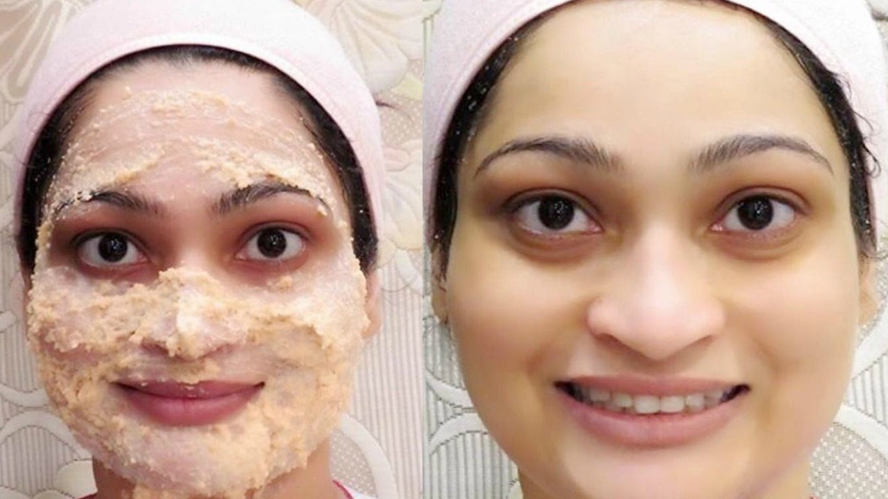 How To Use Tomato Face Pack To Treat Acne in Hindi