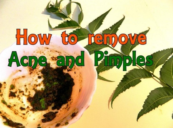 Neem leaves To Remove Pimple
