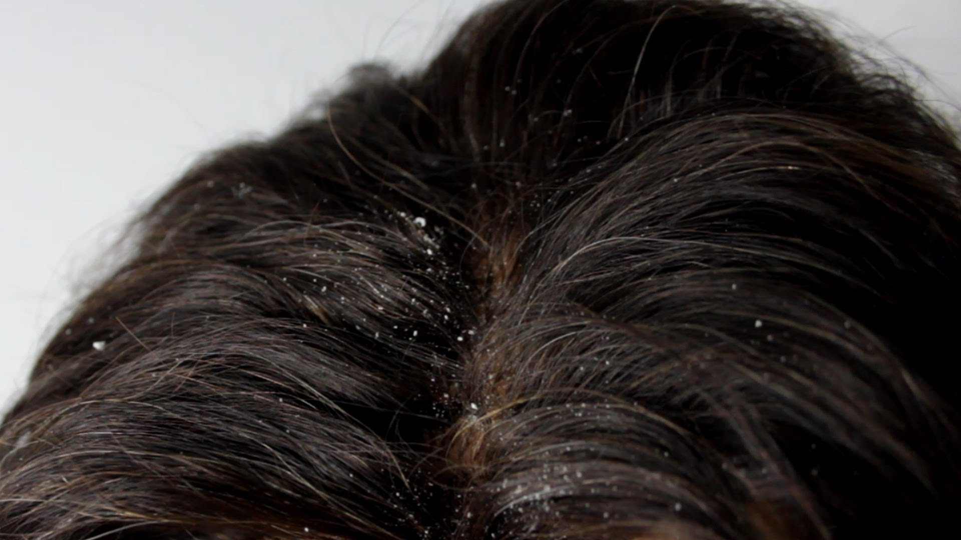 how to remove dandruff